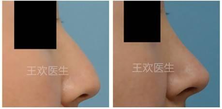 北京自体肋软骨鼻综合