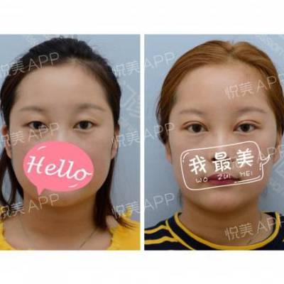 北京微创双眼皮