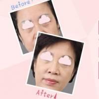 外切去眼袋   改善松弛下垂 不留岁月痕迹