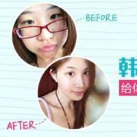 2380元韩式双眼皮创伤小 双眼变美更会放电