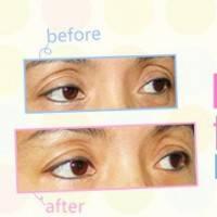 广州外切法去眼袋 去掉眼袋皱纹  眼周全方位年轻