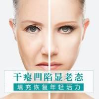全脸脂肪填充 拥有饱满自信容颜 告别老态 线条更自然