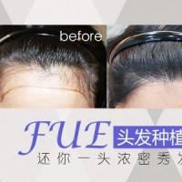 广州植发 拥有浓密黑发 恢复翩翩风度