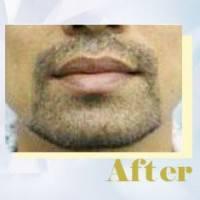 FUE胡须种植定制专属个性化胡须造型