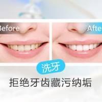 上海超声波洗牙抛光喷砂 去黄去渍 赶走牙石牙垢 保护牙齿健康