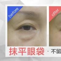 抵御眼部衰老倦容 恢复活力神采