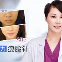 宁波颜术特惠 巨便宜瘦脸针仅需899元 30天内消费有效