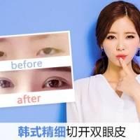 韩式精细切开双眼皮 操作精细让你恢复更快 更早拥有魅力大眼