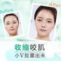 衡力瘦脸针 表情自然 侧脸弧度优美匀称