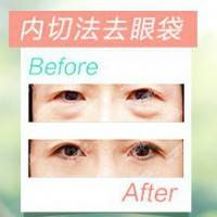 内切法去眼袋 微创隐痕 精细去眼袋 立显年轻
