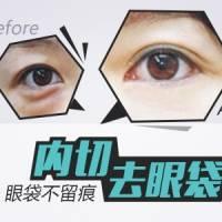 微创去眼袋 去眼袋不留痕