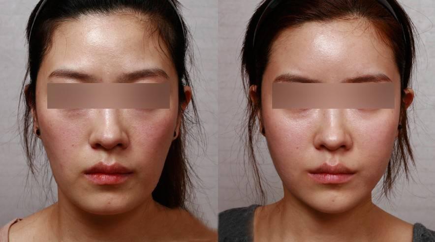 长沙面部自体脂肪填充 填充出饱满网红脸 4500 对称部位 任性挑选 悦美整形