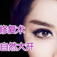 CFLR内眼角一级修复 去除失败痕迹 恢复眼部灵动魅力