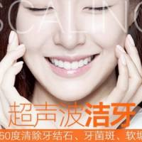 上海超声波洗牙 360度清洁牙垢
