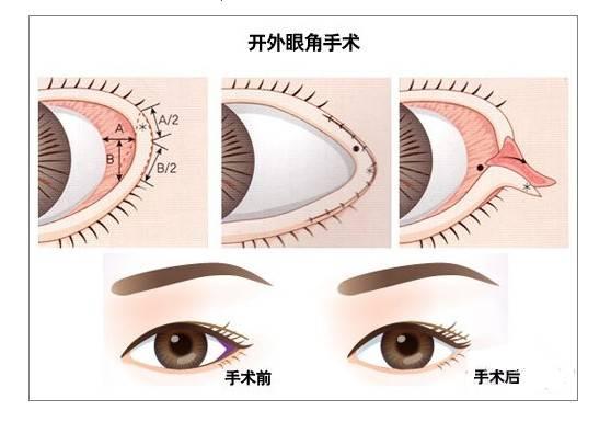 开眼角手术影响出行吗