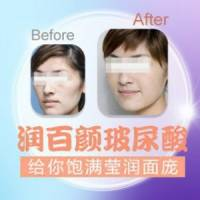上海润百颜玻尿酸1ml 限时特惠 给你水嫩翘美容颜