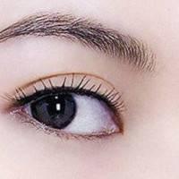 【韩式三点+开内眼角】韩式三点双眼皮加开内眼角