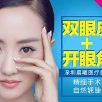深圳开眼角联合双眼皮 悦美专享 开眼角+微创双眼皮 只为给你美双眼