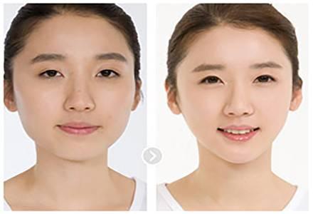打瘦针脸后脸部下垂吗