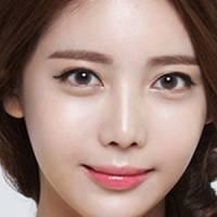 4D综合完美隆鼻 - 王惠芳主任精雕假体隆鼻+耳软骨打造完美东方女人