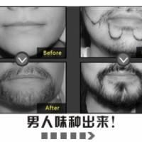 北京雍禾植发 胡须种植