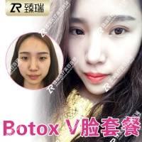 美国进口BOTOX保妥适瘦脸套餐 进口瘦脸针+射频V脸提升+玻尿酸冰导补水