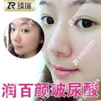 润百颜小分子玻尿酸 1ml 不限购!