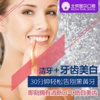 北京圣贝标准型炫彩美白套餐 舒适无痛 即刻拥有靓白美齿