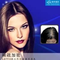 稀疏加密种植 让你的头发浓密起来!