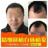 头发/胡须/鬓角种植 40毛囊单位 丽星国际MUT无痕无血痂微植技术