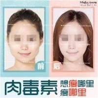 瘦脸针100u 正品特价不限购 打造精致小V脸 除皱紧肤