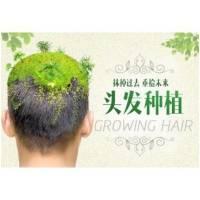 杭州植发 头顶稀疏加密种植 天大的事还你颜值