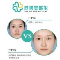 沈阳V脸套餐  衡力100单位+2ml海薇玻尿酸+VRF面部紧致提升