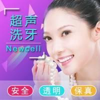 上海洗牙 牙齿美白 超声波洁牙 喷砂洁牙