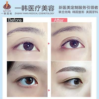 珠海韩式半永久美瞳线 不用画眼线也能放大双眼 电力十足