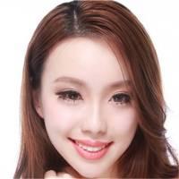 武汉全切双眼皮 自然甜美风 日记返80% 院长手术 武汉双眼皮特价促销