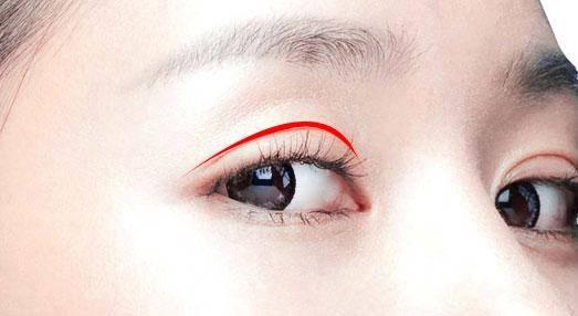 打造芭比眼的重点是后眼尾,把眼角向下调一些,改善眼睛瞳孔外侧的三