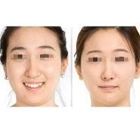 西安精细化面部吸脂打造完美小脸