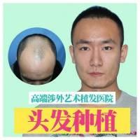 毛发移植修复头部疤痕性脱发  告别不堪过去 弥补美丽缺陷