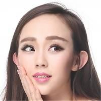 北京V-LINE瓜子脸手术 V脸打造+轮廓线改善+立体精雕
