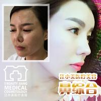 武汉江小美鼻整形基地 硅胶隆鼻 院长亲诊