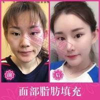 北京软黄金自体脂肪填充 精雕童颜芭比脸 单部位脂肪填充