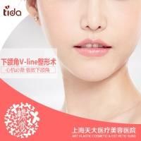 上海下颌角长曲线截骨+外板去除 弧度自然大V 流畅曲线 恢复更快 拒绝长久肿胀期