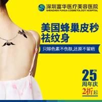 深圳美国蜂巢皮秒祛纹身 秒变无痕 美丽看得见