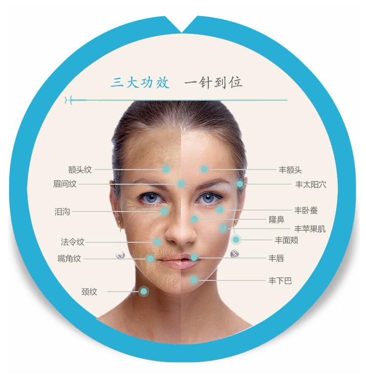 注射微整 北京爱芙莱玻尿酸1ml注射 无痛玻尿酸/隆鼻/丰唇/立体面部图片