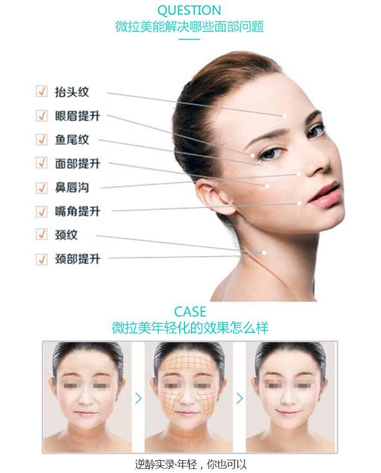科学倒勾设计,精确植入皮肤的真皮层,肌肉层,筋膜层,三层提拉,将面部