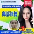 成都鼻修复 @邓东伟  800元抵8000元✚案例返现✚专车接送 热销中