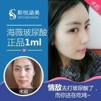 北京海薇玻尿酸0.75ml 10年以上整形专家亲诊 立体五官 帮你塑造嘭嘭少女脸