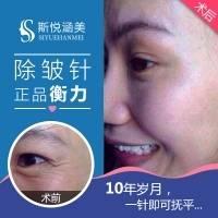 北京衡力除皱针 单部位除皱 10年以上整形从业专家亲诊 消除动态皱纹重现无皱肌肤