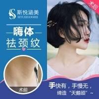 北京嗨体去颈纹1.5ml  一次即刻见效 正品足量保证嗨体针 紧致提升祛颈纹